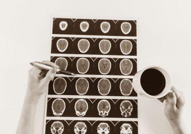 Neurochirurg i jego specjalizacja - pytnaia- odpowiedzi